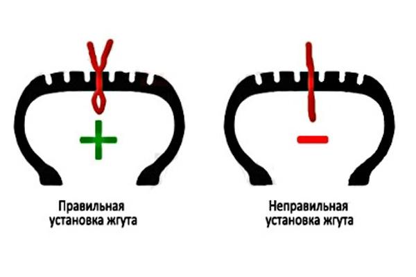 схема установки жгута